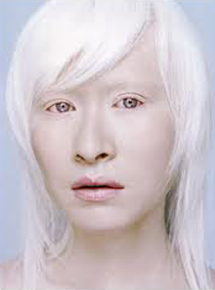Albinism as it is called when it effects humans is considered a inherited condition with much stigmatization.