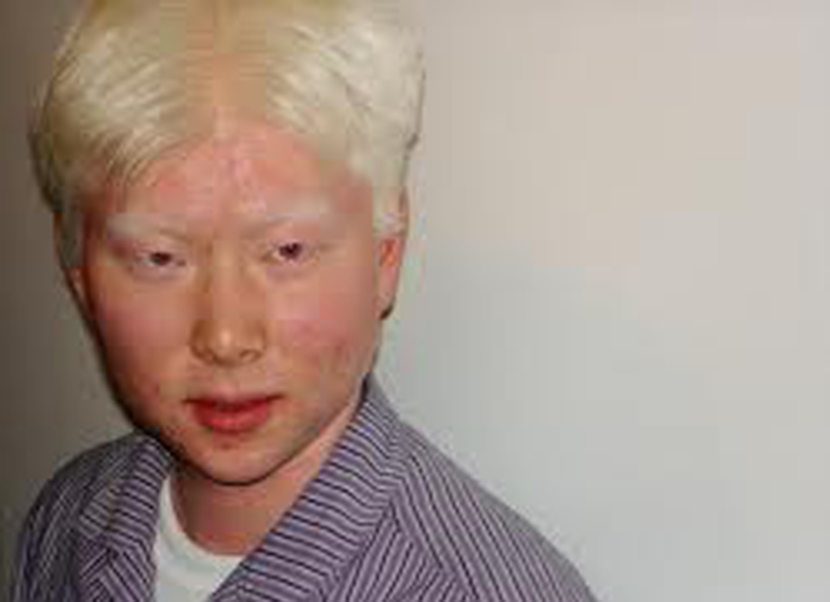 Albinism can effect any race.
