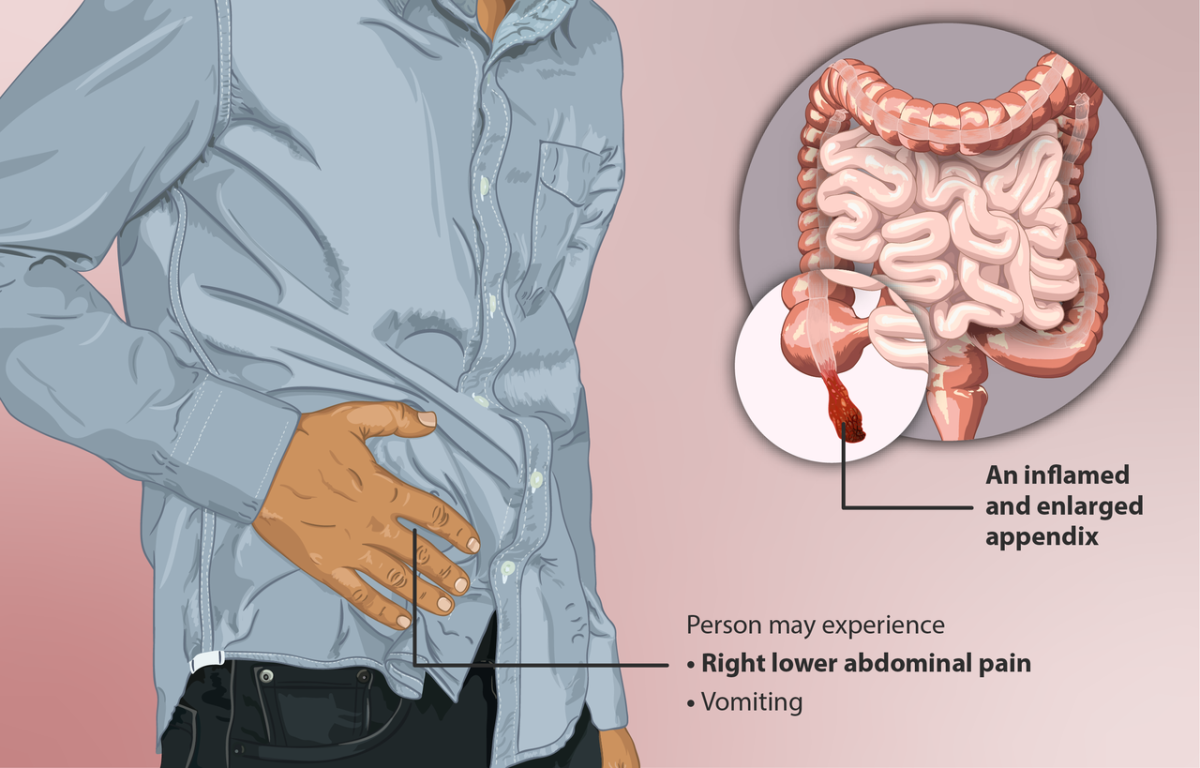 A person suffering from appendicitis.
