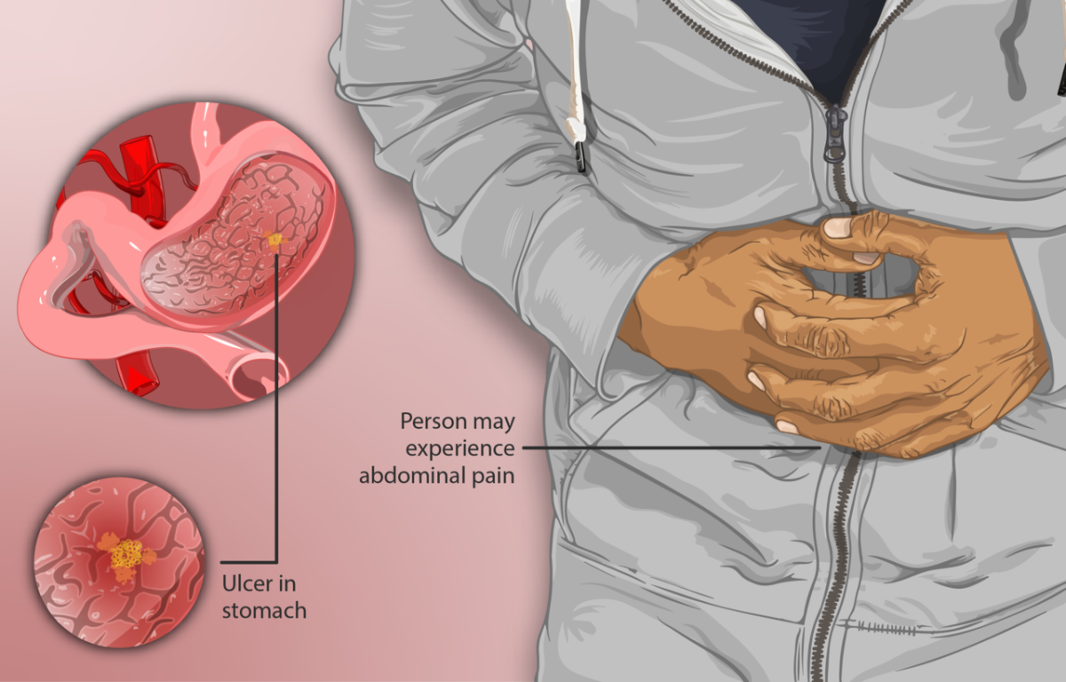 A person suffering from peptic ulcers.