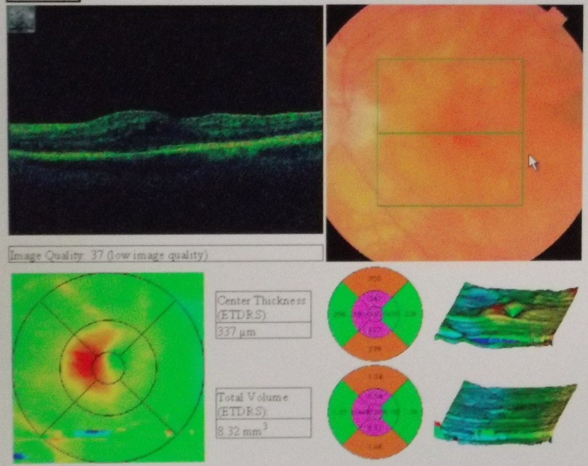 Retina OCT scan of the left eye  Vein Leaking Fluid (logging) into Linda's Left Eye.