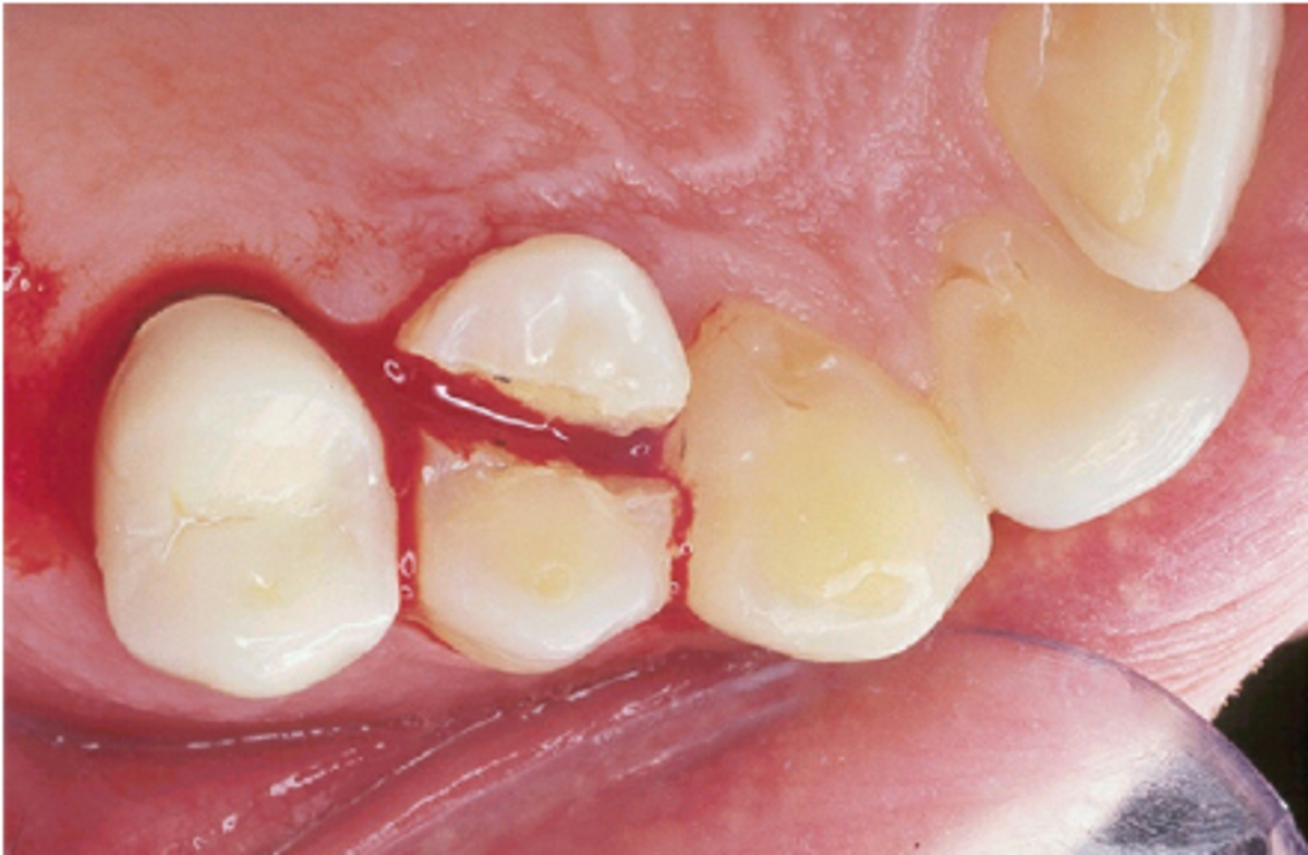 the-advent-of-the-dental-implant