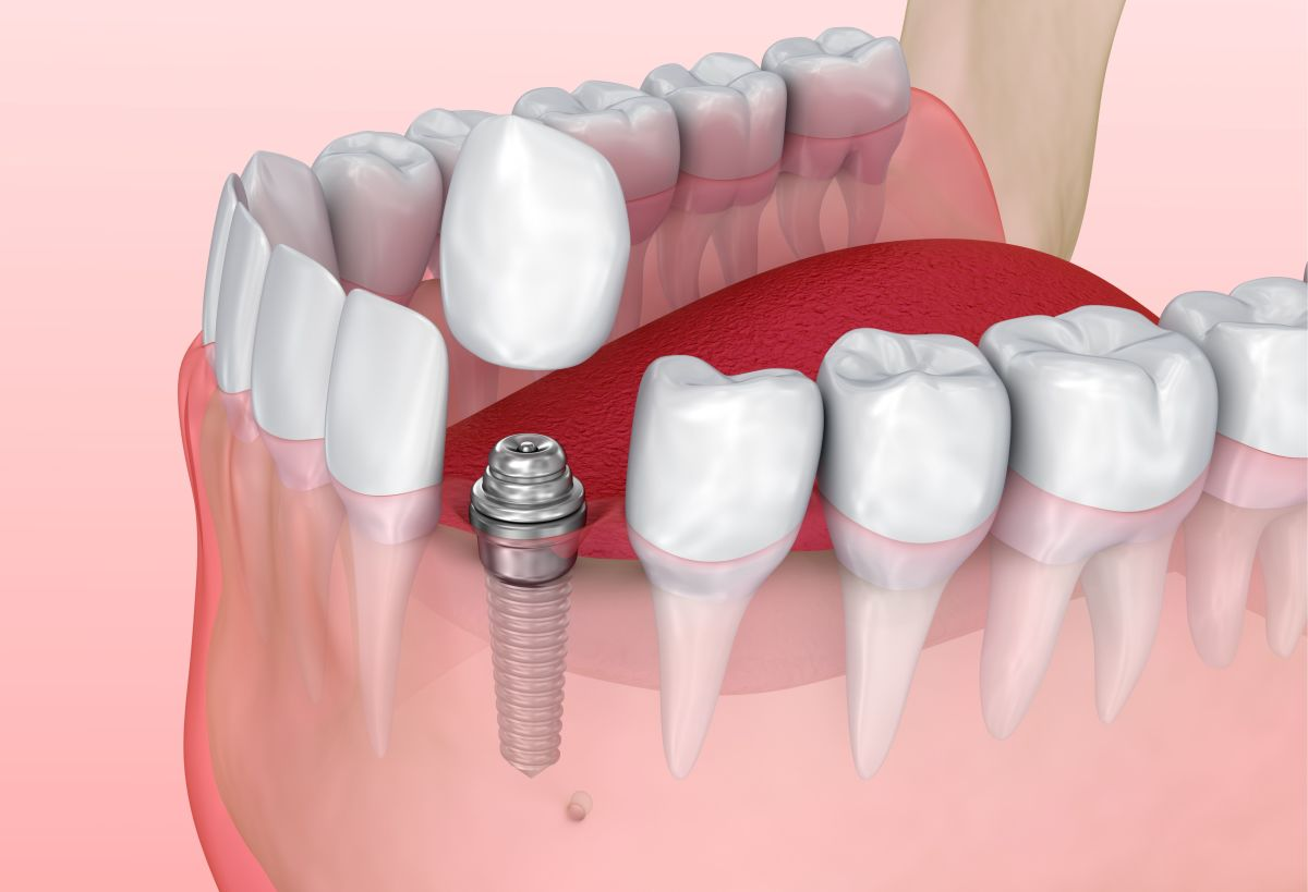 Why I Decided to Get a Dental Implant