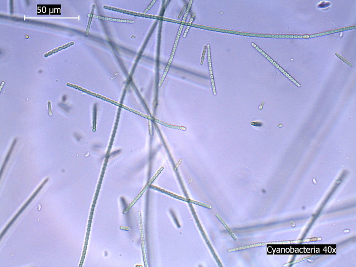 Cyanobacteria under the microscope.  Image courtesy 'iceclanl' & Wikimedia Commons.