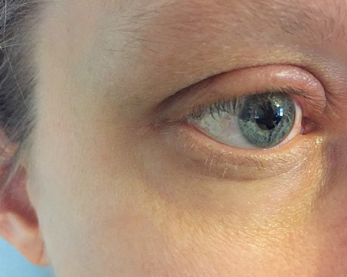 Swollen eyelid