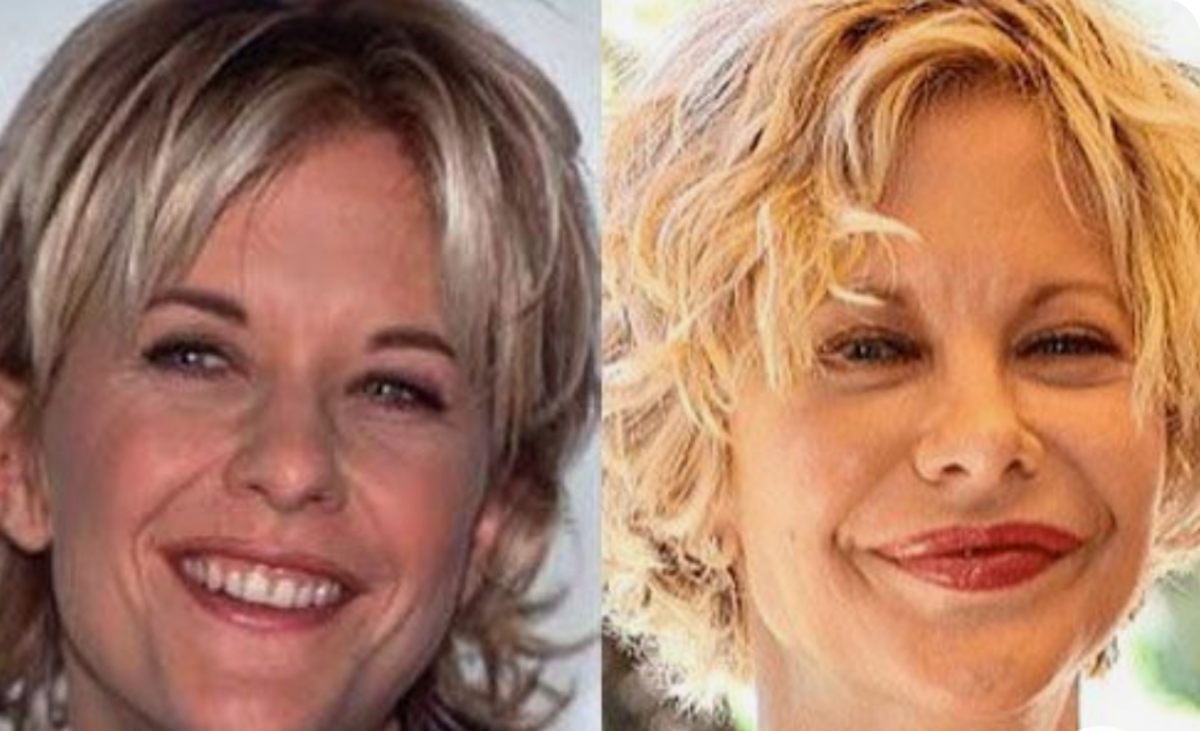 Meg Ryan (before and after)