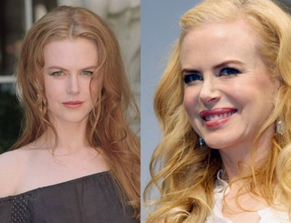 Nicole Kidman (before and after)