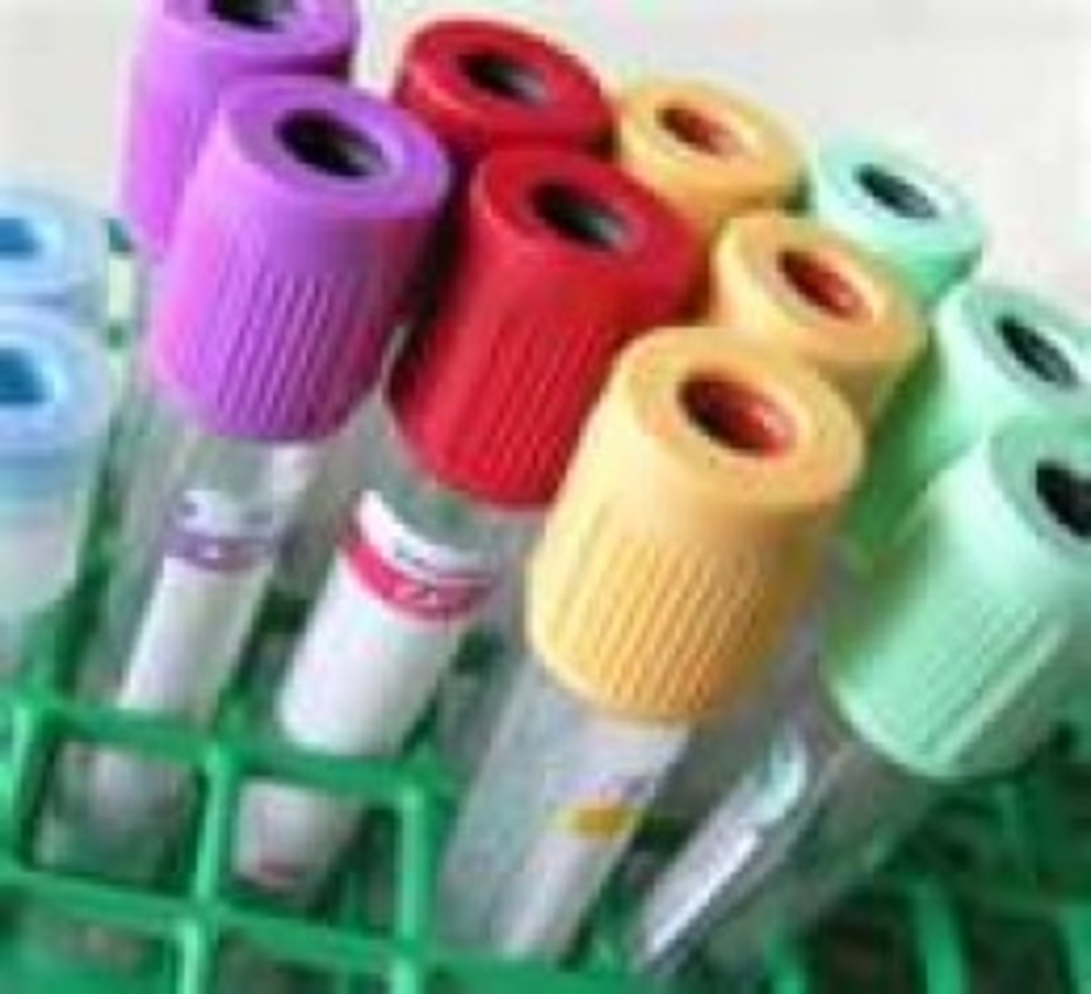 An assortment of colored vacutainers will be used to draw your blood.