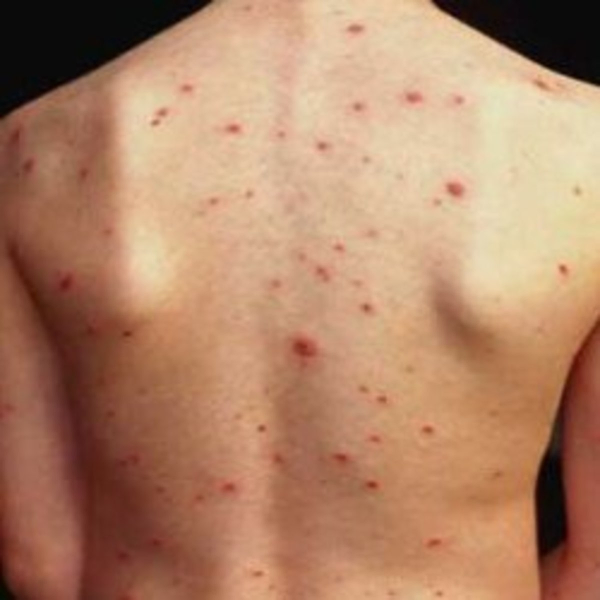 Back acne can be isolated to one spot on the back or spread all over.  Getting rid of it isn't easy, but is possible!
