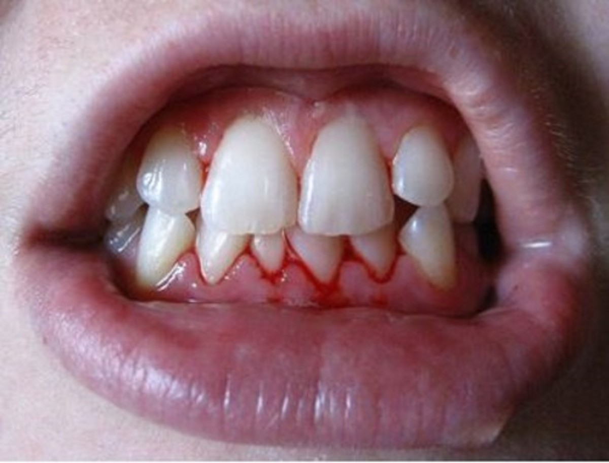 A bacterial infection of the gums causes them to bleed.