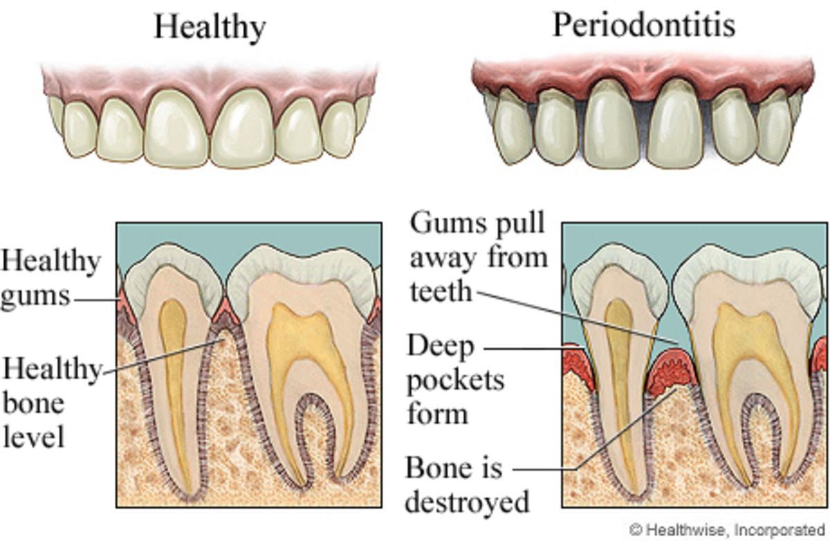 Healthy vs. unhealthy gums