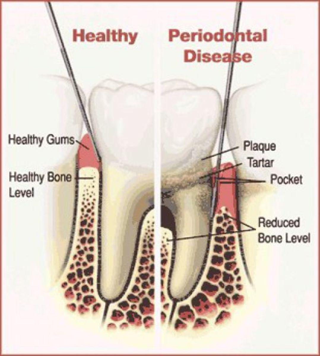 Periodontal disease destroys the jaw bone.