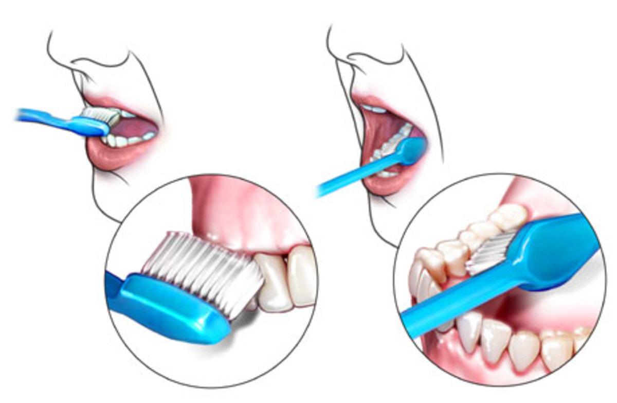 benefitsofbrushingteeth